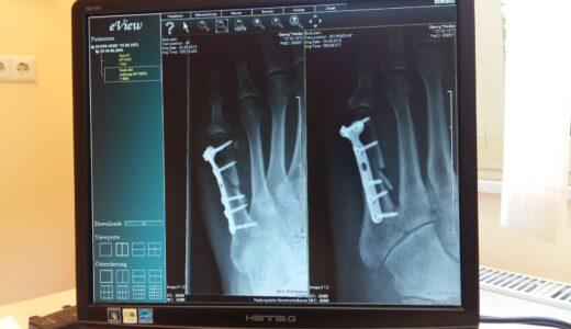 バスケットボールにおける怪我はここが多いよっていう論文解説。